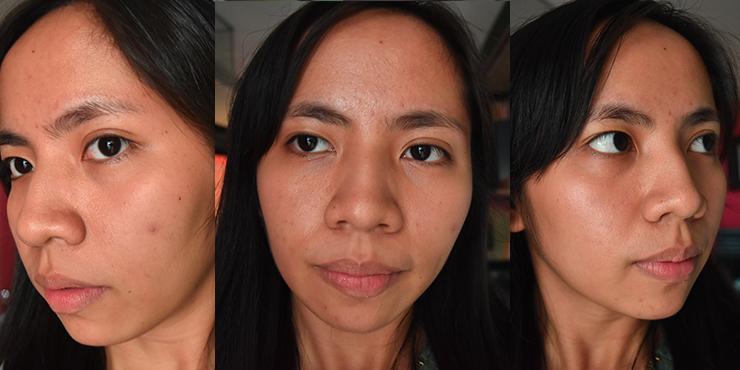 Skincare update